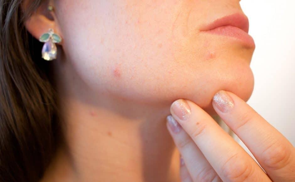 Un vaccin contre l'acné pourrait bientôt être commercialisé