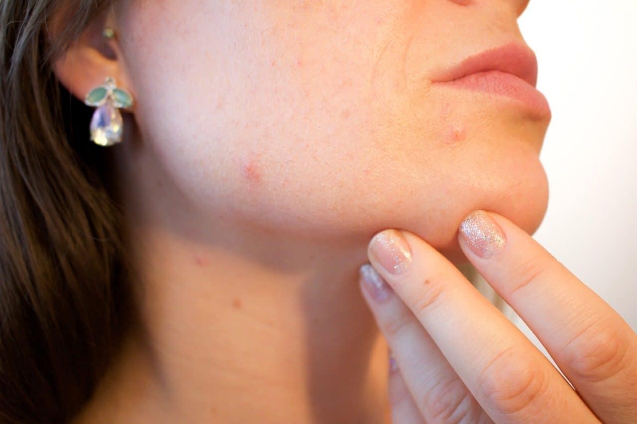 femme ayant de l'acne sur le visage