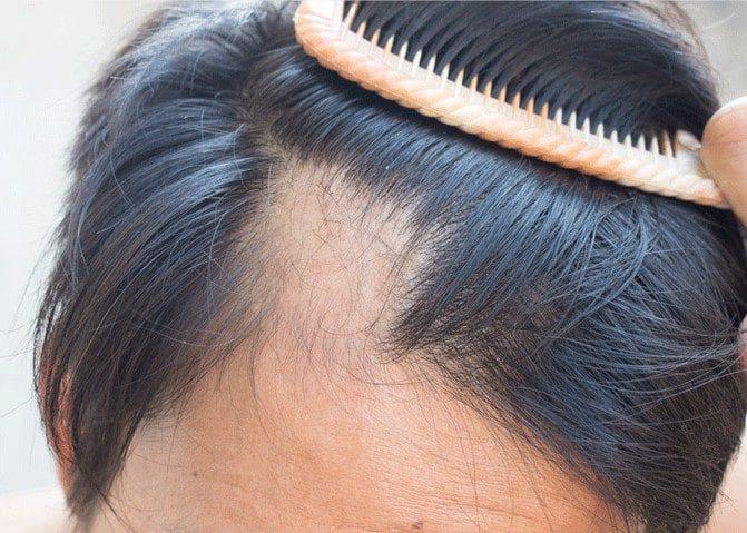 Perte de cheveux : les bons gestes pour l'éviter