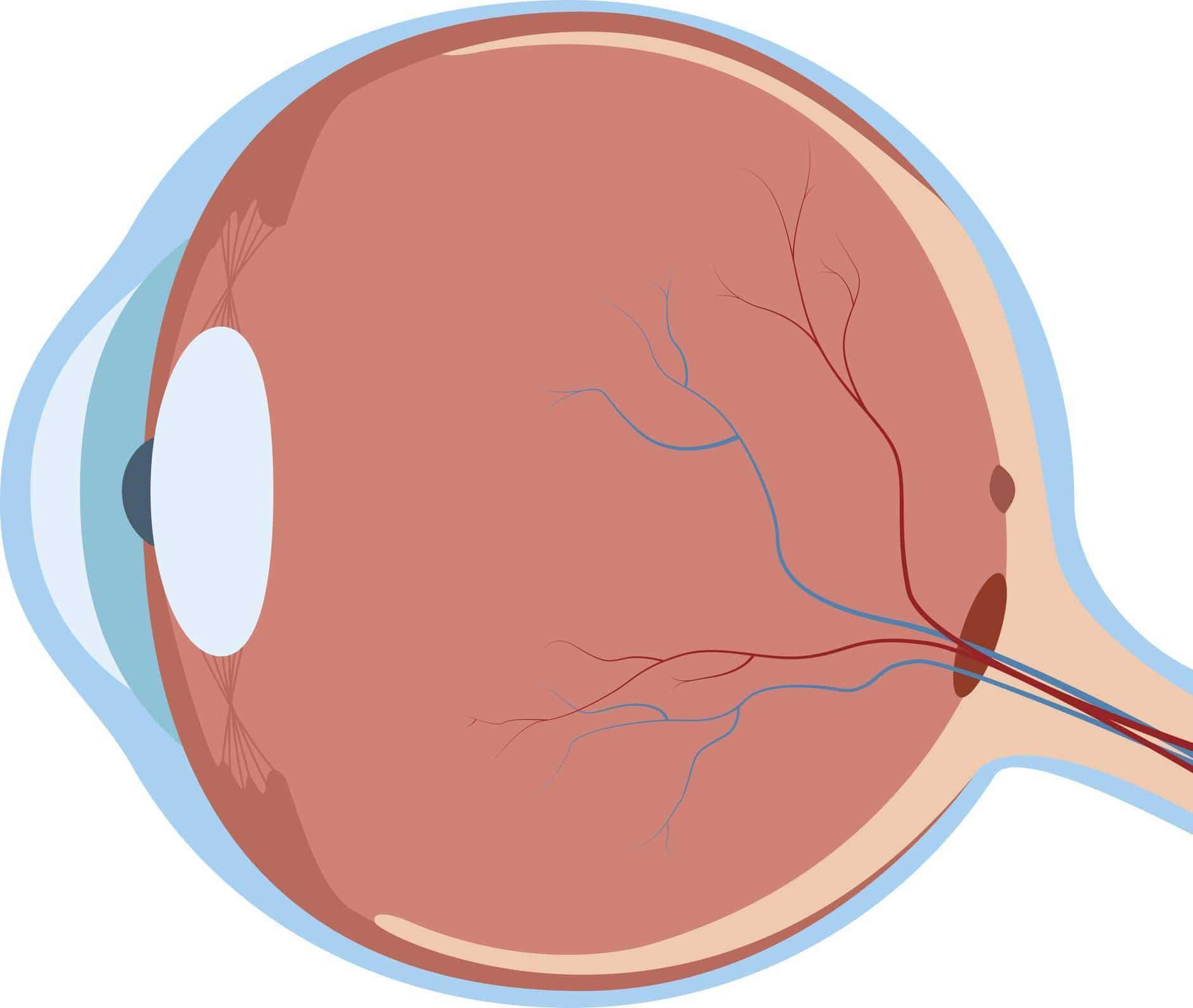 œil maladie