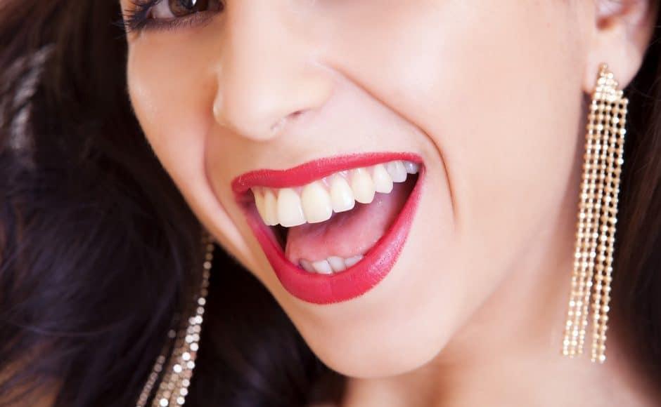 Le blanchiment des dents chez le dentiste : techniques, prix et contre-indications