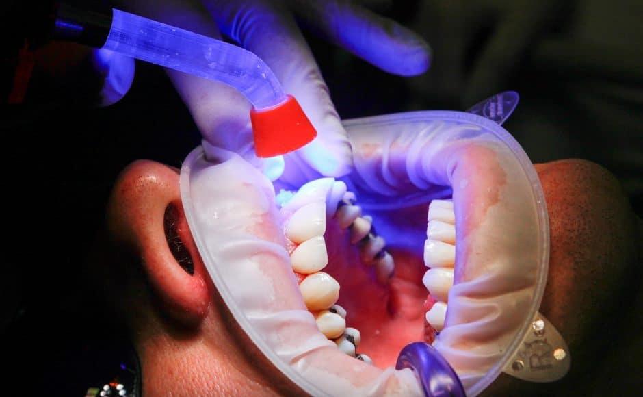 Facettes dentaires et facettes lumineers : utilité, technique de pose, prix et suivi