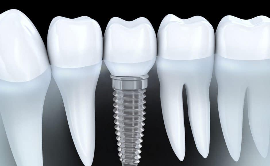 Implant dentaire : types, pose, prix, remboursement et durée de vie