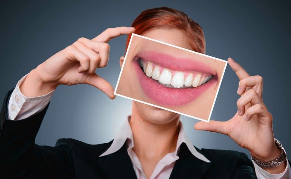 Combien coûte vraiment un blanchiment dentaire fait par le dentiste, soi même ou dans un bar à sourire?