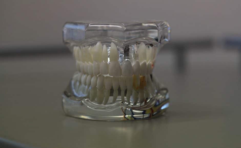 La couronne dentaire, qu'est-ce que c'est ?