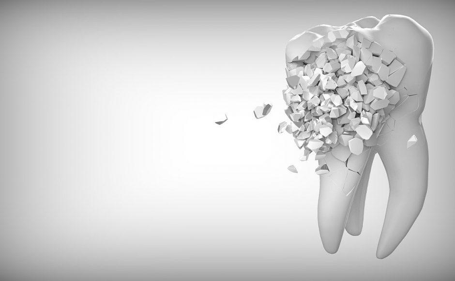 Dent cassée : causes, traitement et restauration