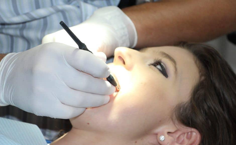 Le détartrage dentaire : chez le dentiste et chez choi
