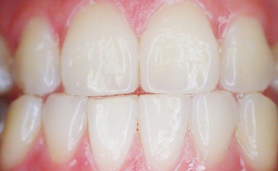 L'abcès dentaire